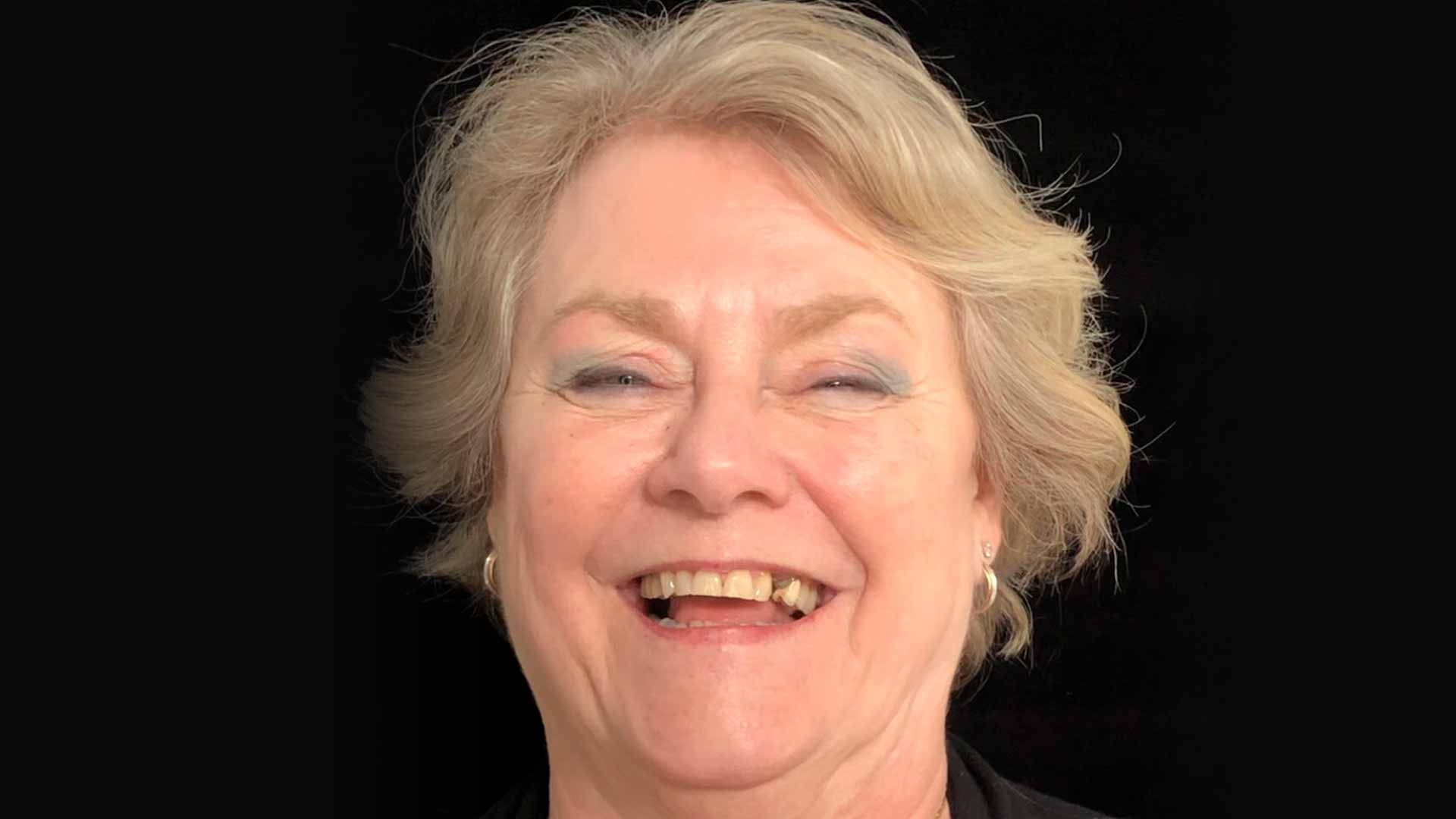 A close-up of an older woman smiling to show her teeth before having dental implants.