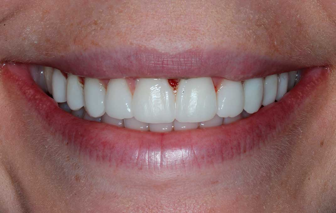 The patient's teeth and smile after having DSD veneers.