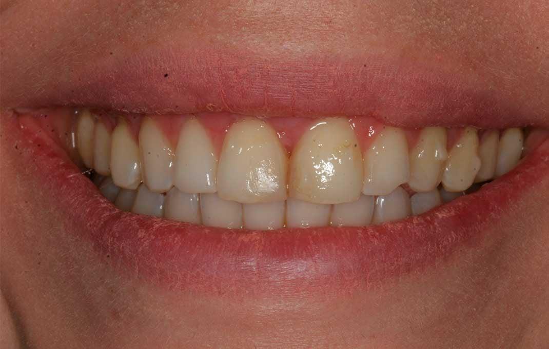 The patient's teeth and smile before having DSD veneers.