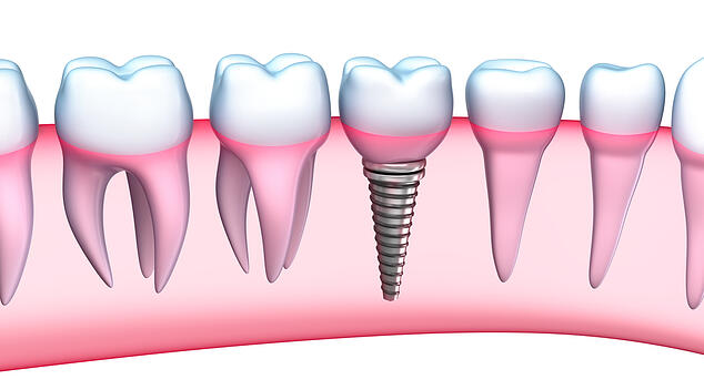 dental_implants_picture