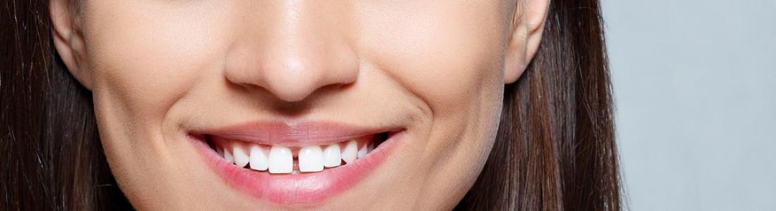 How to Fix Gaps in Teeth