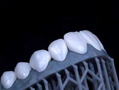 A close-up of natural-looking teeth created using Digital Smile Design.