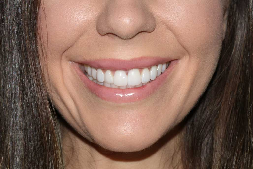 A close-up of a woman's beautiful smile created using veneers and Digital Smile Design.