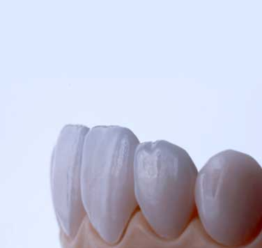 Natural-looking teeth created using Digital Smile Design.