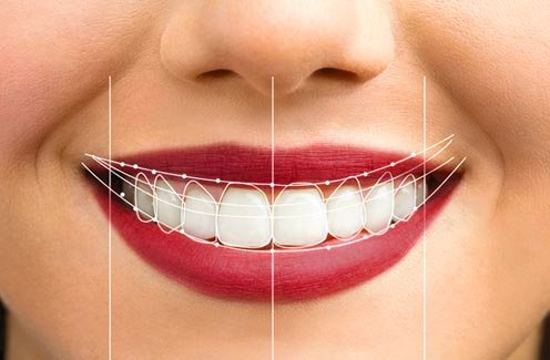 A patient's smile with line drawings showing the alterations made to suit her facial features.